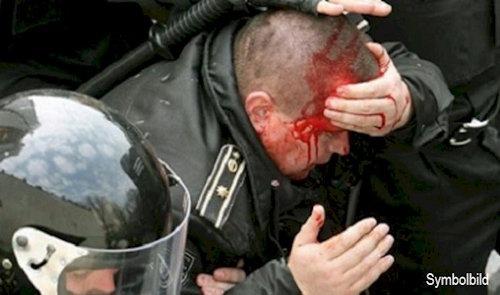 verletzter_polizist