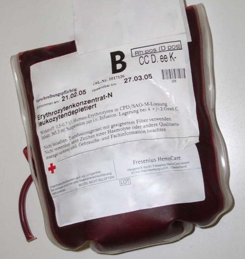 bluttransfusion